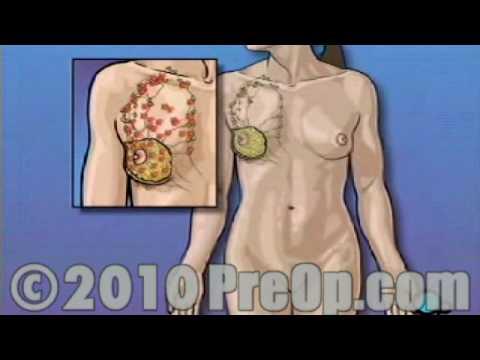 PreOp® Educación del Paciente La mastectomía total Cirugía de los Senos