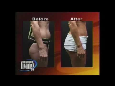 Brazilian Butt Lift - Benefits & How it works - Before and After photos