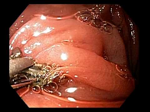 Upper Gastrointestinal Endoscopy Procedure Testing for Celiac Disease and Gluten Intolerance
