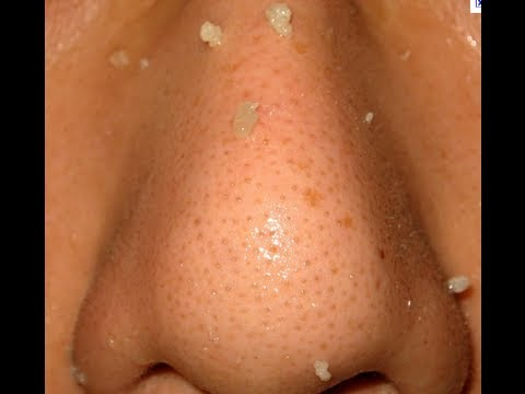 Get rid of blackheads and clogged pores WARNING GRAPHIC