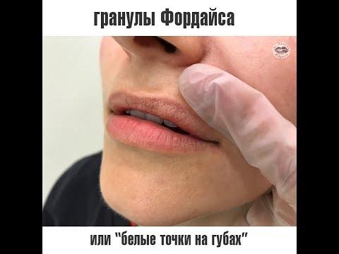 Гранулы Фордайса на губах