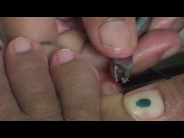 PEDICURE TUTORIAL - FROM UGLY TOENAILS TO BEAUTIFUL - AMAZING FOOT PEDICURE