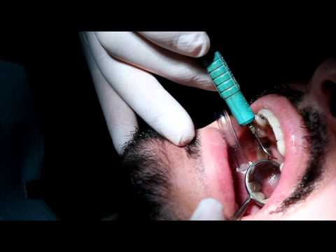 Needle Free Anesthetic for Dental Cleaning - Total Patient comfort