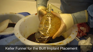 Secondary Butt Implant Surgery Video, Small Implants Exchanged with 875cc Round Silicone Implants