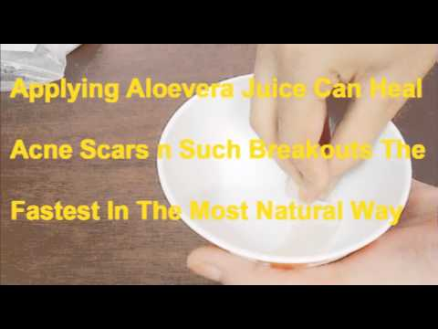 Remove Acne Scars:Home Remedy For Bad Acne Mark/Get Rid Of Acne