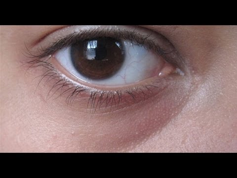 DermTV - How to Eliminate Under Eye Dark Circles [DermTV.com Epi #41]