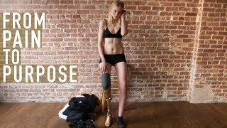 Lauren Wasser: How One Model Lost Her Leg to Toxic Shock Syndrome and Found her Life's Purpose