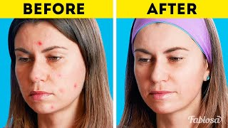 6 natural remedies to cure acne, bad breath, nausea, and more  How to | Face mask