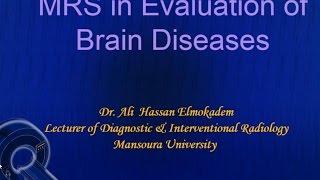 MR spectroscopy in evaluation of brain diseases - Dr. Ali Elmokadem