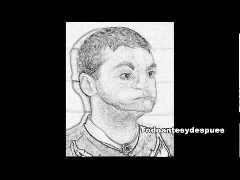 ... transplante de cara completo de Richard Lee - Dibujo a lapiz