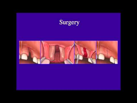 Alveolar Bone Grafting – Dr. Patrick Combs, MD Plastic Surgery