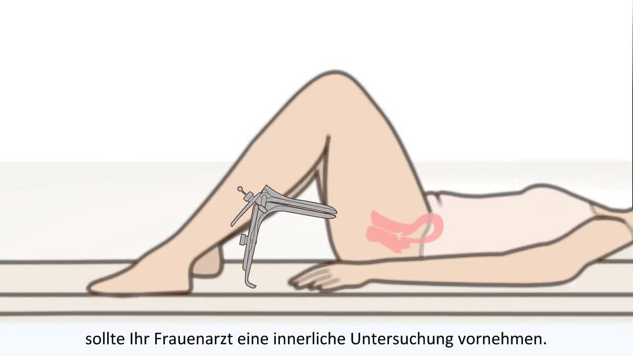 Vaginale Hysterektomie vaginale Manschette