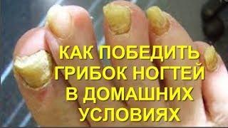 8 Способов Как быстро и эффективно избавится от грибка на ногтях