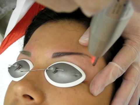 Laser Tattoo Removal - Permanent Makeup Eyebrow