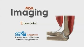 Imaging of Elbow joint - Prof. Dr. Mamdouh Mahfouz (In Arabic)