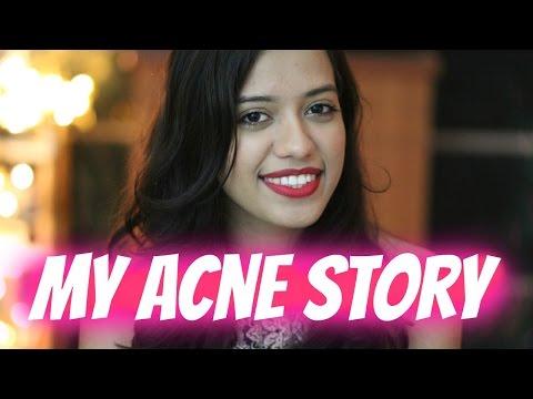 My Acne Story | Debasree Banerjee