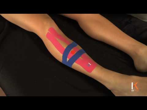 KT Tape: Shin Splints- Anterior