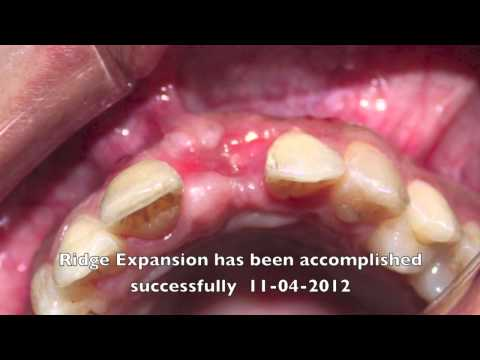 Ridge Expansion with Bone Graft and GBR Membrane by Dr Firas Albadran