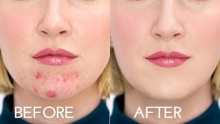 HOW TO STOP FOUNDATION RUBBING OFF A BREAKOUT | Sharon Farrell