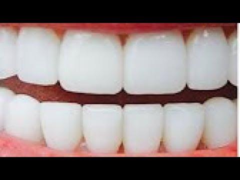 صدق أو لا تصدق!!تبييض الأسنان في دقيقتين وازالة الاصفرار بمكونين فقط مجربة ومضمونة