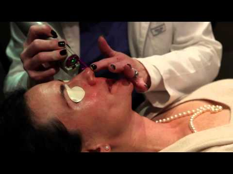 Lasers treatment for rosacea