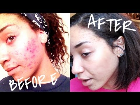 SKIN| Skin Care For Severe Acne