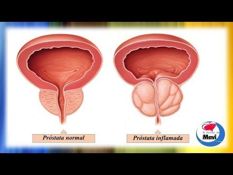 целители от простатита