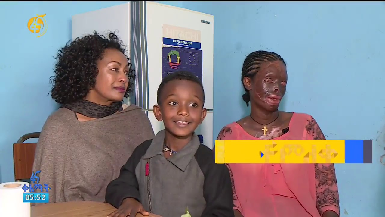 Acid Attacks Are Getting Out Of Hand In Ethiopia