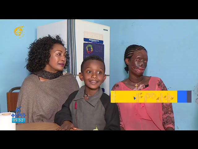 Fana Television | Interview With Acid Attack Vitim