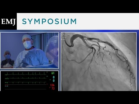 Video of Patient Case Showing Real-Time Implantation of the CARILLON Device