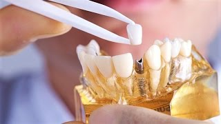 İMPLANTLA TOMOGRAFİ VE MR ÇEKİLİR Mİ? | MİNE DENTİN