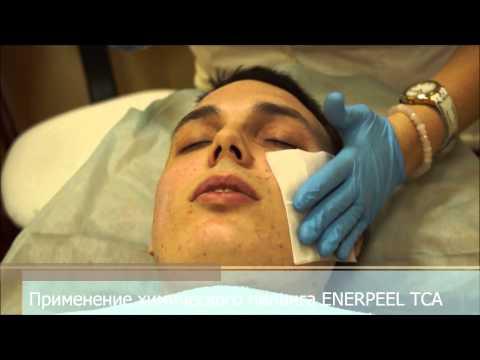 Как выровнять кожу химическим пилингом