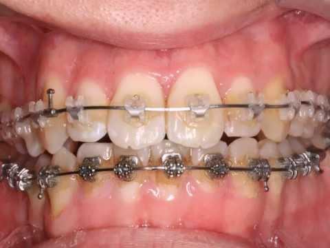 teeth braces Adult