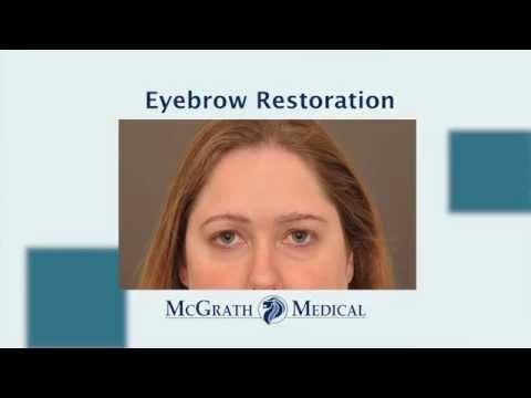 Eyebrow Hair Restoration | McGrath Medical | Austin TX