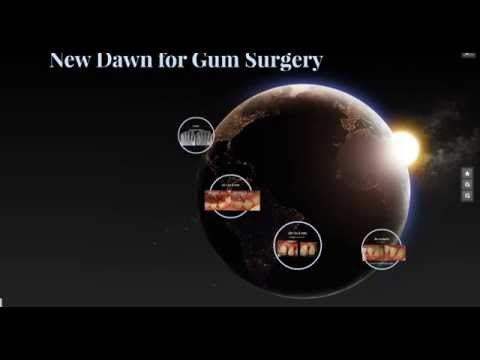Laser Gum Surgery without bone graft material in Los Angeles Ca Downey 562 869 0928