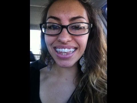 Thinking About Getting Braces?