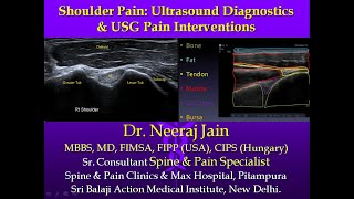 SHOULDER PAIN: Ultrasound Diagnostics & USG Pain Interventions: Dr Neeraj Jain MD, FIMSA, CIPS, FIPP