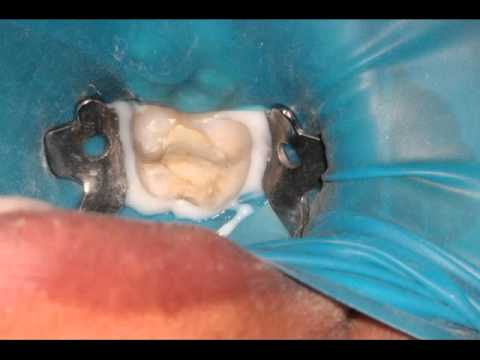 Root canal treatment in a severe tooth abscess