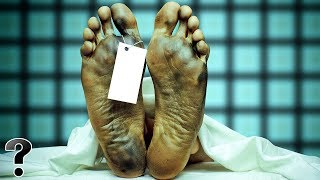 What Happens To Our Bodies After We Die?
