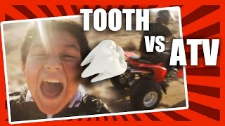 Tooth Pulled Out By ATV