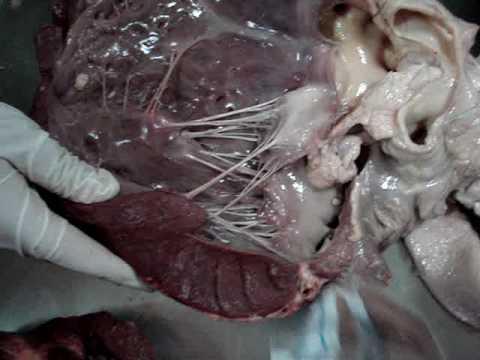 Disección de corazón 1