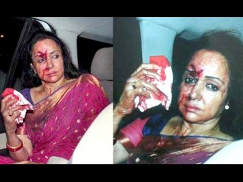 Hema Malini injured in road accident in Rajasthan | Hot Bollywood News | Dausa, Child Death