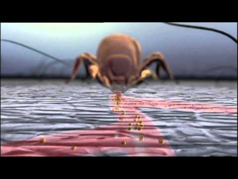 Zecken übertragen Neue Krankheiten