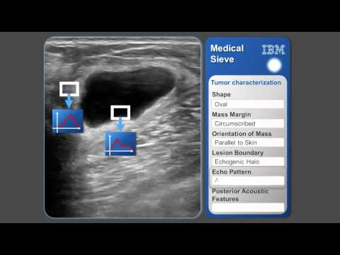 Slush 2014 - Transforming Healthcare With IBM Watson | Black Stage #slush14