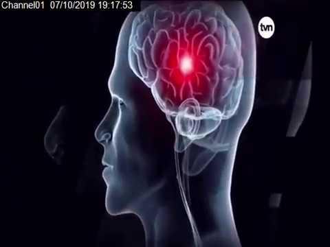 programa-de-infarto-cerebral