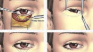 Lower eyelids surgery.....we do it for you