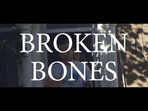 Rob Lynch - Broken Bones