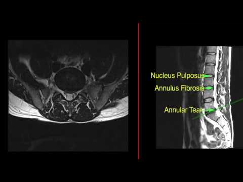 Annular tear in lumbar spine