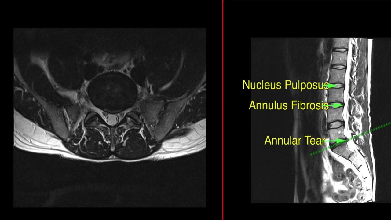 Lumbar spine mri anatomy