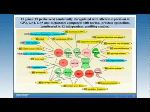 How IPA Can Help Explore Potential Biomarkers for a Complex Disease